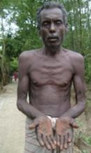 person suffering from arsenic poisoning 9