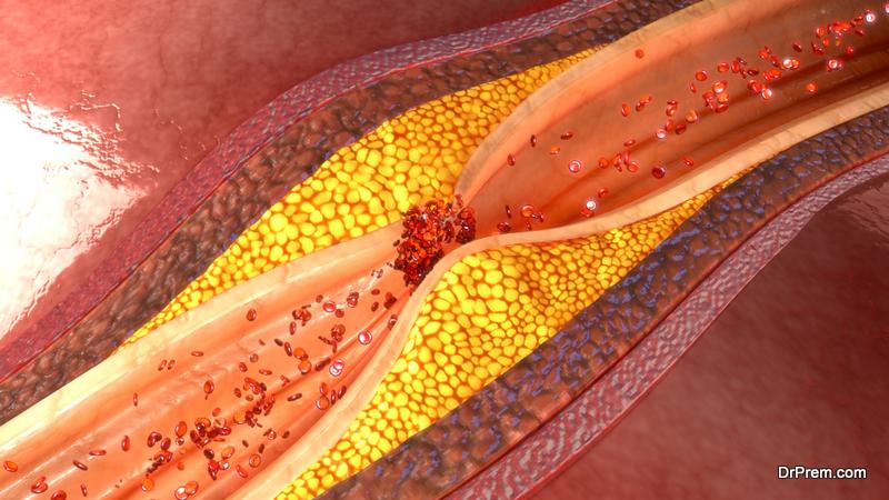 cholesterol-clots